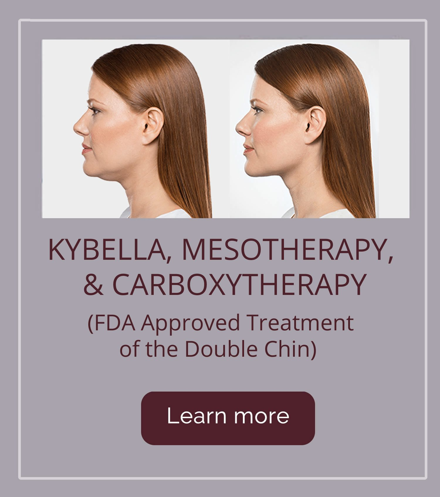 Kybella, Mesotherapy & Carboxytherapy