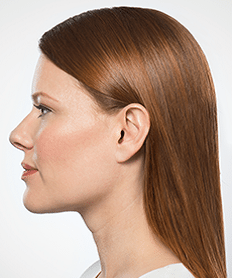 Actual Kybella patient - after