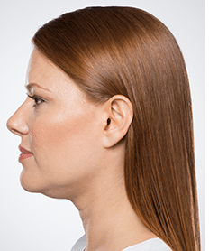 Actual Kybella patient - before