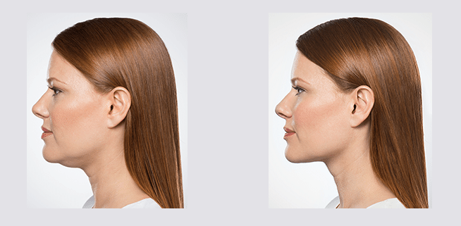 Before and After with Kybella